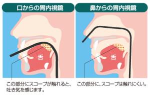 口と鼻からの胃カメラの比較