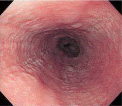 好酸球性食道炎の白斑