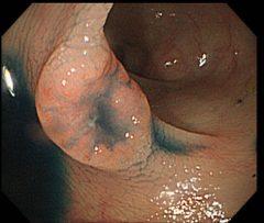 早期大腸がん